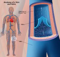Варикоз глубоких вен нижних конечностей: симптомы, лечение