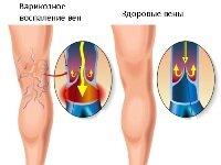 Варикозное воспаление вен: лечение