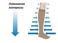 Методы лечения варикоза: современные, народные, хирургические