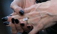 Выпирающие вены на руках у женщин