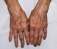 Выпирающие вены на руках от старости