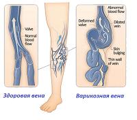 Синие вены на ногах: причины, лечение, как убрать?