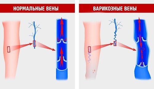 Нормальные и варикозные вены