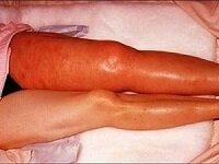 Острый тромбоз глубоких вен