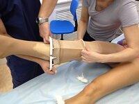 Компрессия ног после склеротерапии