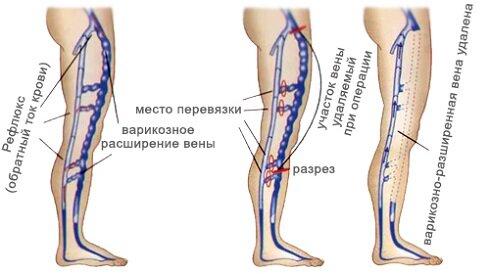 Операция по удалению вены на ноге