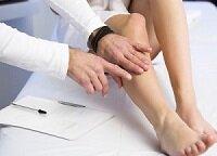 Осмотр ног у врача