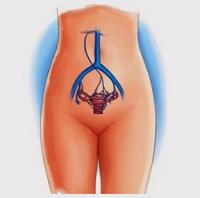 Варикоз шейки матки: симптомы, лечение